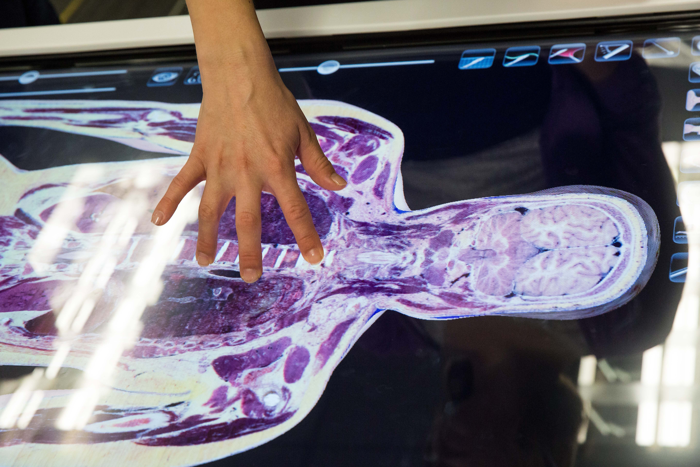 Digital cadavers bring students a deeper understanding of anatomy ...