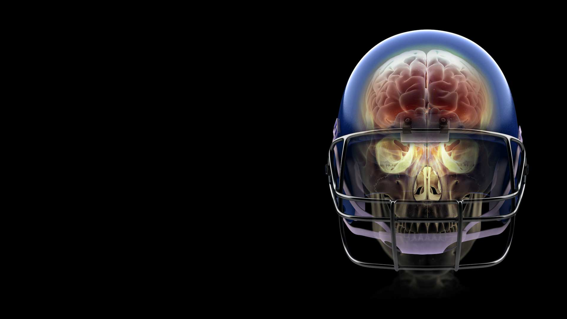 Nursing Schools In Arizona >> New techniques may detect CTE in brains of living former NFL players | ASU Now: Access ...