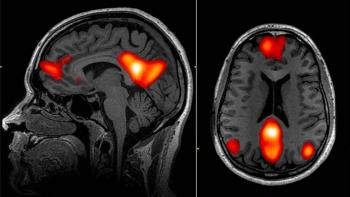 images of brain scans