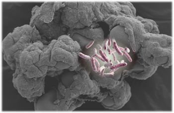 3D tissue model with bacteria