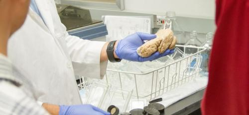 Scientist holds part of a human brain affected by Alzheimer's.