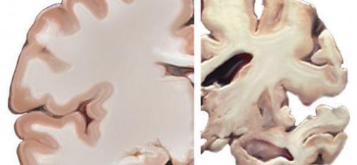 Alzheimer's brain healthy brain