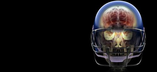 A football helmet with a skull and brain image inside