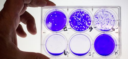 person holding lab slide