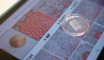 A microfluidic chip created by a team of Arizona State University researchers sits on top of images of cancer cells and fibroblast cells.