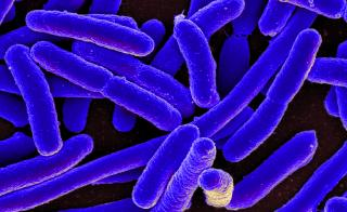 A closeup of E. coli