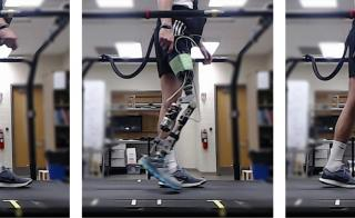 User with prosthetic knee