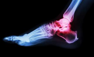 An X-ray of a foot and ankle