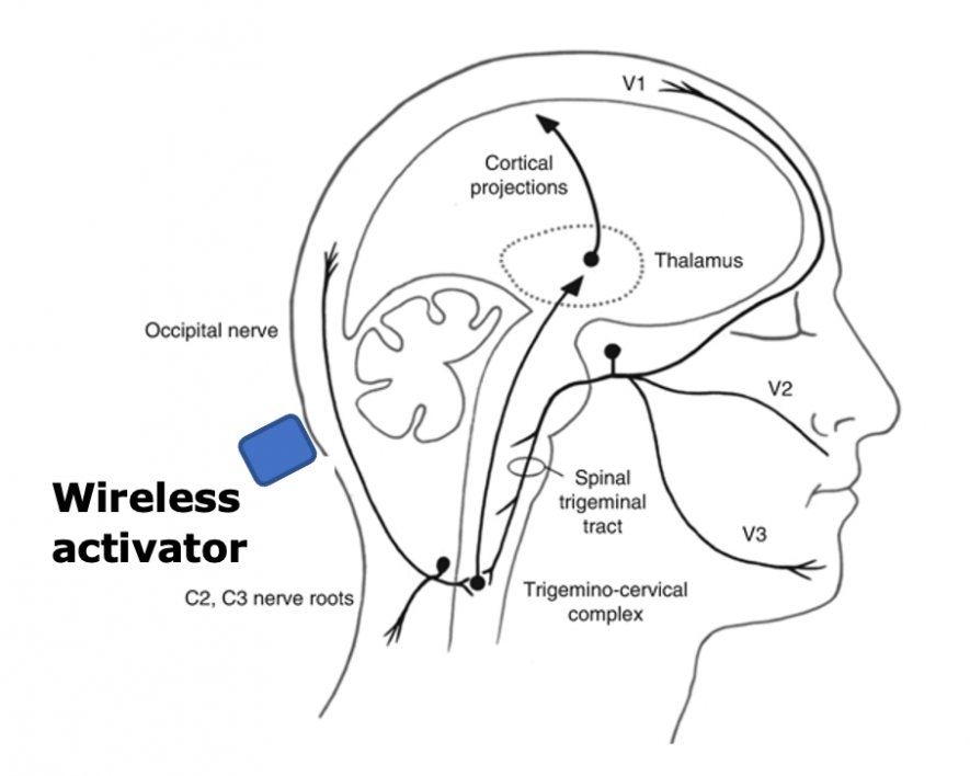 A graphic depicting a person's head and brain with Jitendran Muthuswamy's neurostimulation device that can relieve chronic migraine headaches through electrical stimulation.
