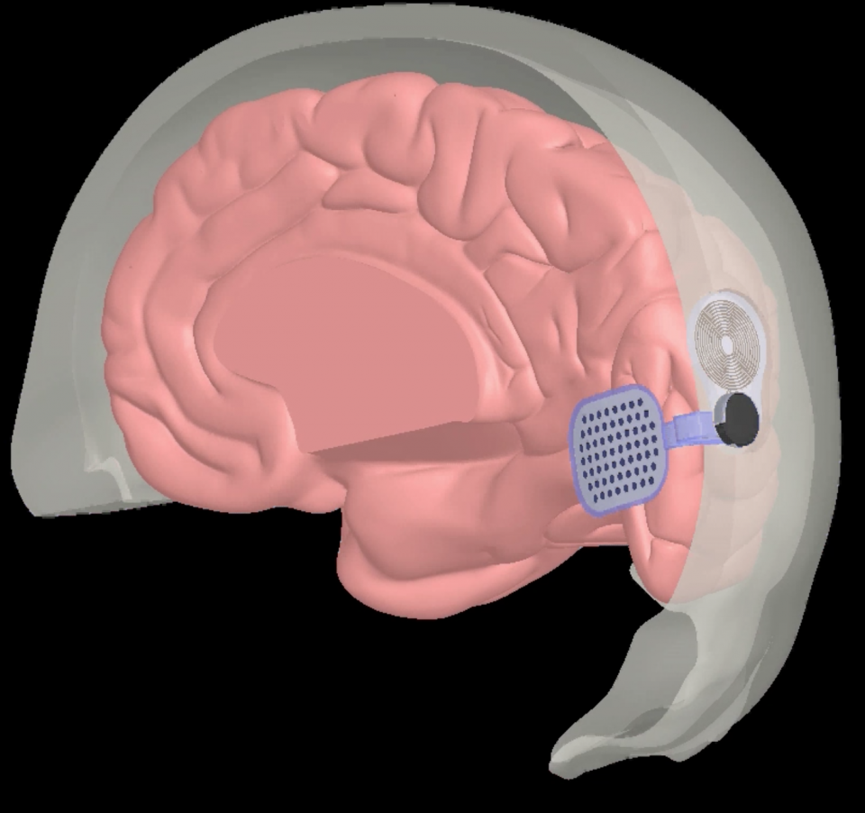Animation of a bionic eye implant and the brain