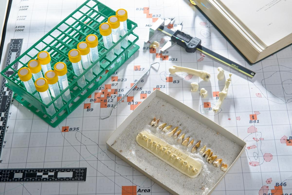 Photo of lab table with vials, teeth casts and tools