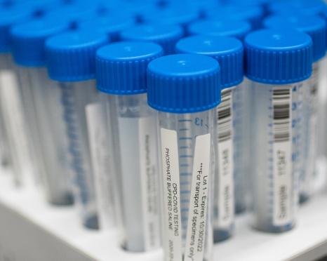 medical testing vials